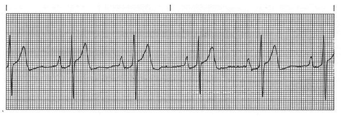photo about Printable Ekg Strips called Educate Rhythm Strip #1